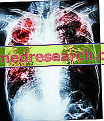 gydomasis kvėpavimas sergant hipertenzija