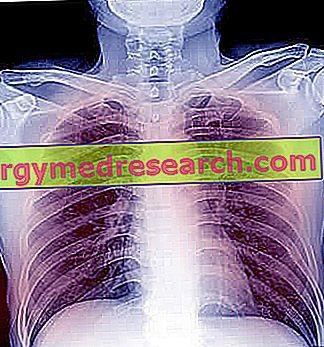 bronchopneumonija