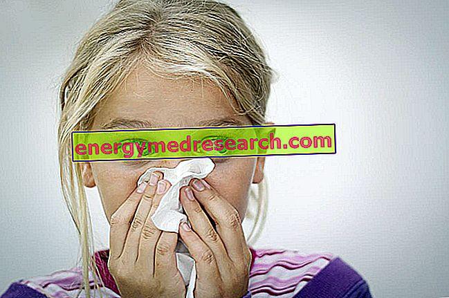 Konvulsiv eller paroksysmal intractable nys