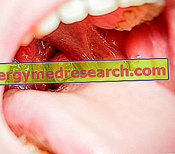 lėtinis tonzilitas ir hipertenzija)
