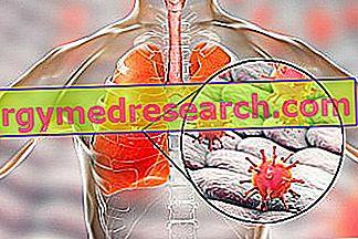 pneumonija sunkus svorio kritimas