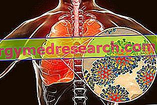 Diferencinė lėtinio bronchito diagnostika