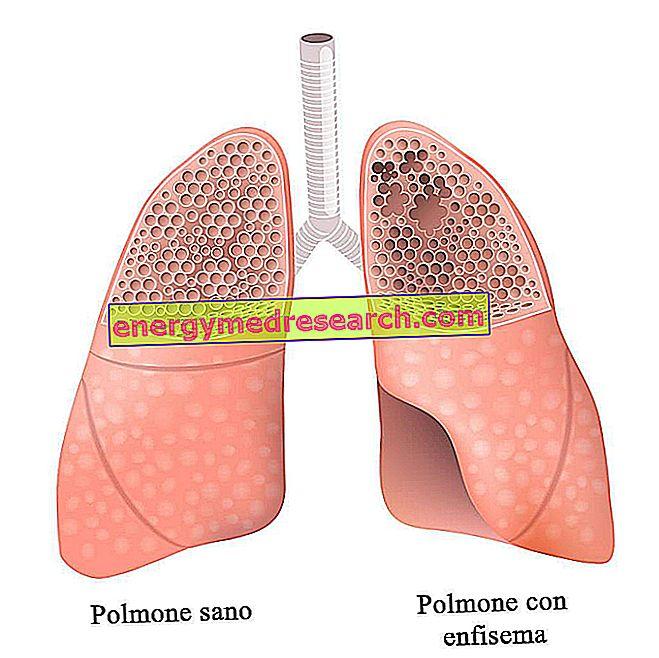Lungentransplantation: einige interessante Zahlen