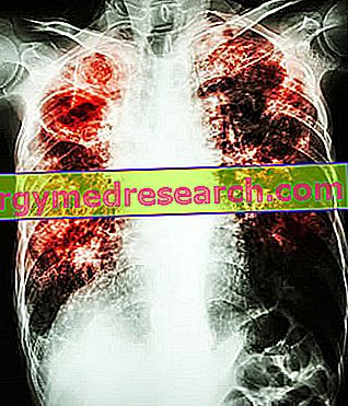 Idiopatická pľúcna fibróza A.Griguolo