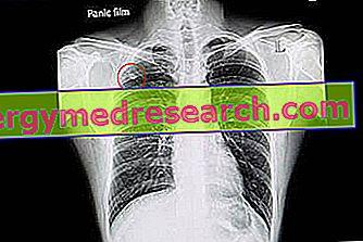mazgelis dėl plaučių ir svorio netekimas