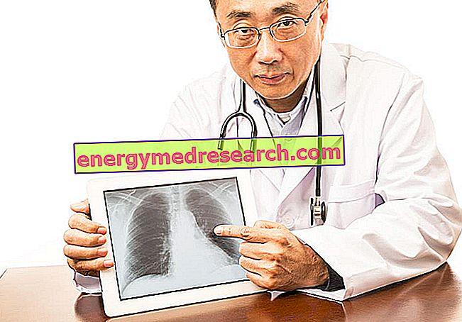 Kā plaušu audi mainās pēc plaušu fibrozes?