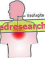 езофагіт