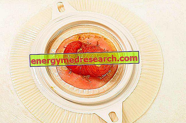 Colostomía: dieta postoperatoria recomendada y alimentos otorgados.