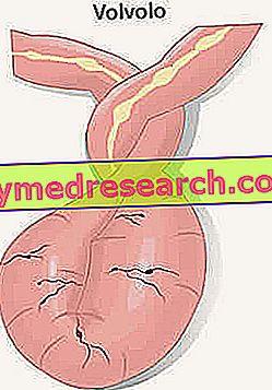 pierderea gradului de obstrucție a intestinului parțial