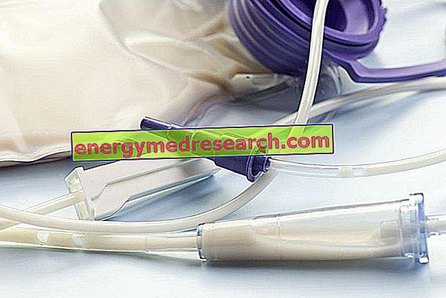 Riesgos y complicaciones de la gastrostomía endoscópica percutánea (PEG)