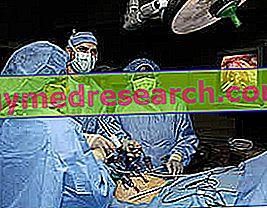 Varikokele - Diagnoza in zdravljenje