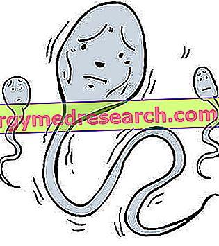 asthenozoospermia