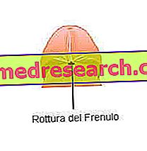 DISFUNCTIA ERECTILA (DE)