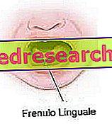 Lingual īss frenule
