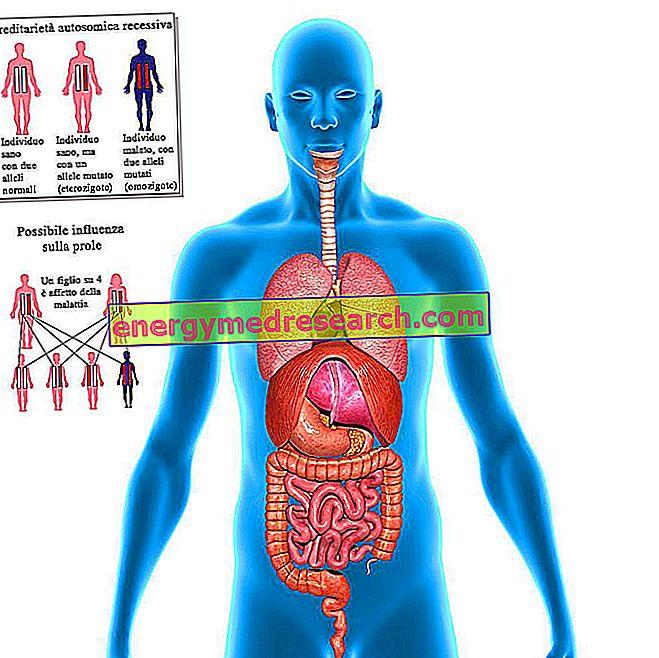 どのような遺伝的状態が、内臓逆転症ですか?