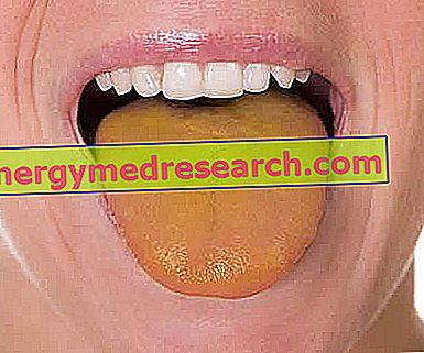 pierdere în greutate limba galbenă