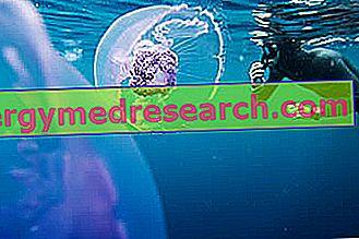 Medūza Sting: cēloņi, simptomi, ko darīt un ko izvairīties G. Bertelli