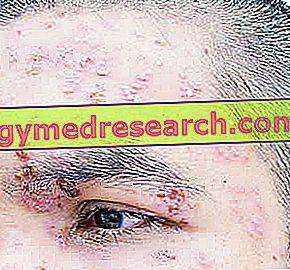 Opravné prostředky pro Ocular Herpes