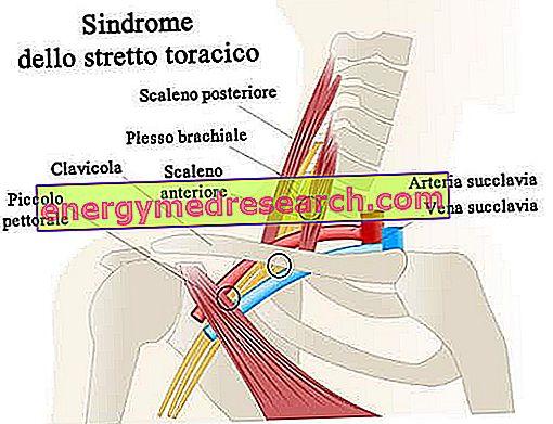 चेस्ट स्ट्रेट सिंड्रोम