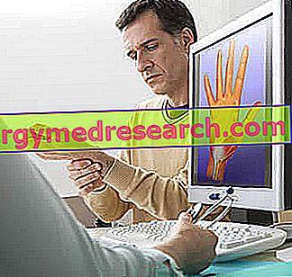 Karpos tunelio sindromo gydymo priemonės