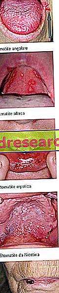 Sztomatitis: meghatározás, okok és tünetek