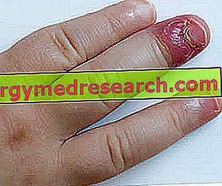 Giradito ili herpetički Pateraccio