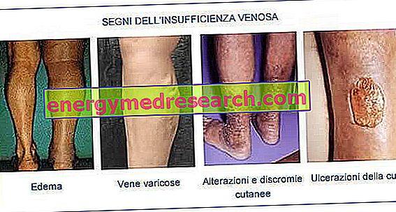 Insuficiencia venosa: síntomas y tratamientos.