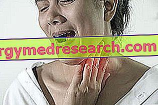 Padidinti limfmazgiai ant A.Griguolo kaklo