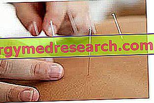 Фибромиалгия - диета, образ жизни и альтернативные методы лечения