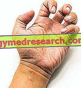 Spastičnost: definicija, vzroki, simptomi, skrb