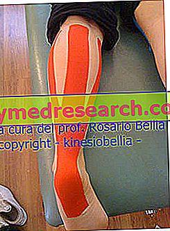 El síndrome del tendón de Aquiles de corredor y el uso de tapetes kinesiológicos ®