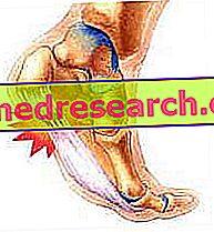 Fascite plantar, ruptura da aponeurose e gravação cinesiológica