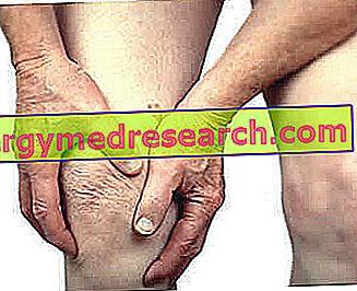 Chondropathie van de patella - Chondromalacia