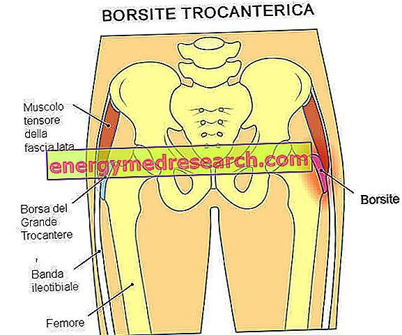 Trochanteric bursit