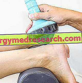 Remedies for Tendon Calcifications