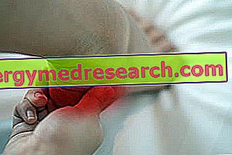 Calcaneare Spur: Hva er det?  Symptomer, årsaker og terapi av G.Bertelli