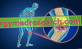 Χόνδρος του χόνδρου: Τι είναι αυτό;  Αιτίες, συμπτώματα, διάγνωση, θεραπεία και πρόγνωση του A.Griguolo