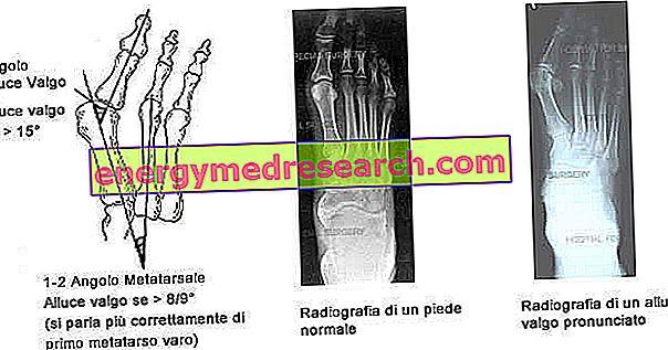 tratamentul gleznelor articulațiilor