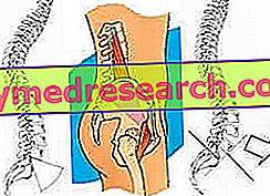 Scoliose als een natuurlijke houding - Idiopathische scoliose: oude en nieuwe concepten, klinische casus