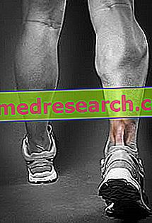 Tendinită tendon Achilles