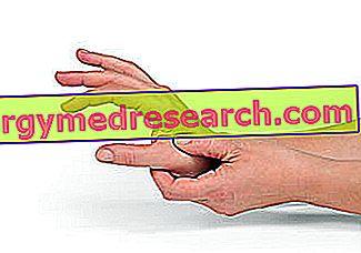 Rhizoarthritis - Rizartrosi A.Griguolo poolt