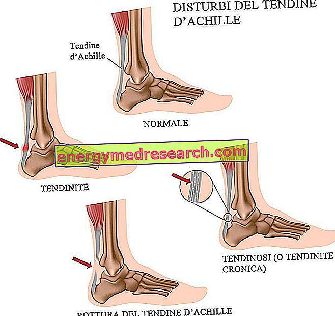 Inflamación y ruptura del tendón de Aquiles: características principales.