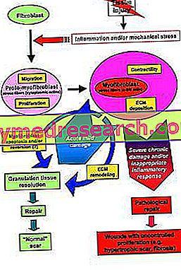 Skoliozė kaip natūralus požiūris - idiopatinė skoliozė: senos ir naujos koncepcijos, klinikinis atvejis