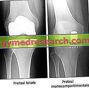 Kolenná protéza - Zotavenie po operácii, riziká a prínosy