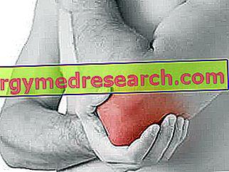 Remedios para la tendinitis