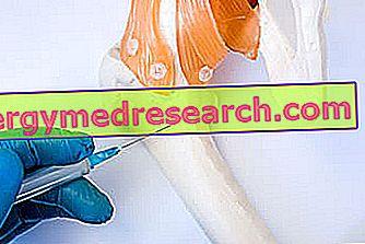 Plasmacytom: Vad är det?  Orsaker, symtom, diagnos, terapi och prognos av A.Griguolo