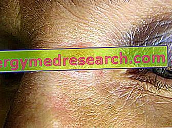 Basalioma: Hva er det?  Årsaker, symptomer, diagnose, terapi og forebygging av A.Griguolo