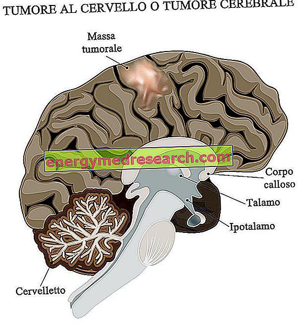 Smegenų augliai: įdomūs skaičiai