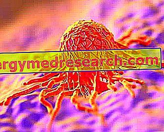 Tumor no Pescoço do Útero