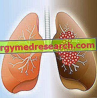 Malý karcinom plic